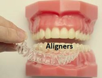 Aligners-by-National-Dental-Centre-Singapore